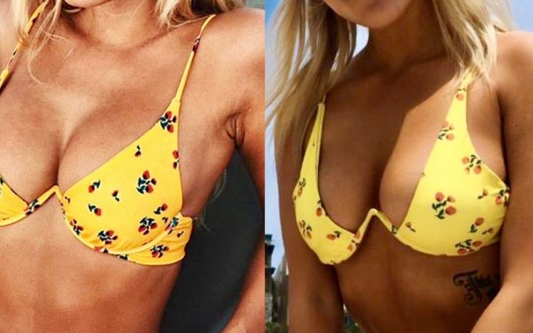 Knock-off Discount Swimwear Sites Pose Challenge to Brands
